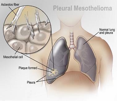 Lungs Cancer, Mesothelioma, Mesothelioma Symptoms,