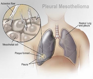 Lungs Cancer, Mesothelioma, Mesothelioma Symptoms,