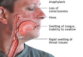 Signs and symptoms of anaphylaxis and management in the dental office