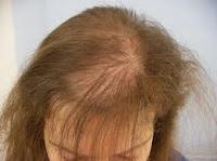 alopecia psicógena