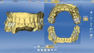 dentalmax laboratorio odontotecnico centro frenaggio cad/cam
