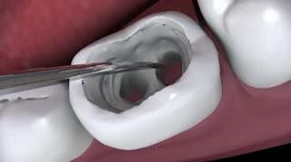Récupération du canal radiculaire