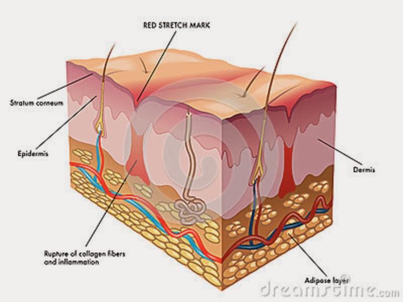 Cuando la dermis se rompe... aparece la estría ~ Homeostasis 3.0
