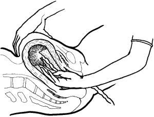Fase – fase dalam pengluaran uri (kala III)