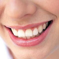دراسة غريبة:صحة الأسنان تمنح النساء فرص الإنجاب