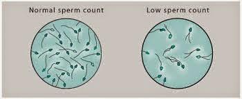 Azoospermia-Nil sperm
