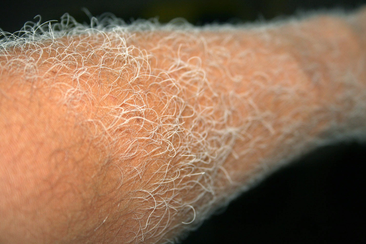 Dusty forearm