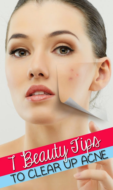 Clear Up Acne With These 7 Tips