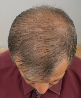 Problem with thinning and balding hair