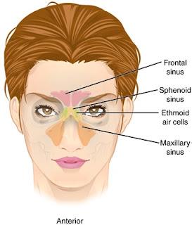 Sinusitis Pada Saat Hamil: Penyebab, Gejala dan Penanganannya