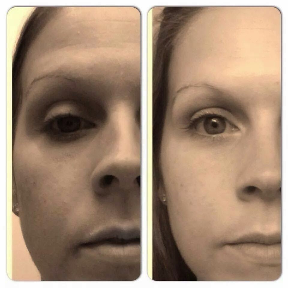 Nerium before and after 3