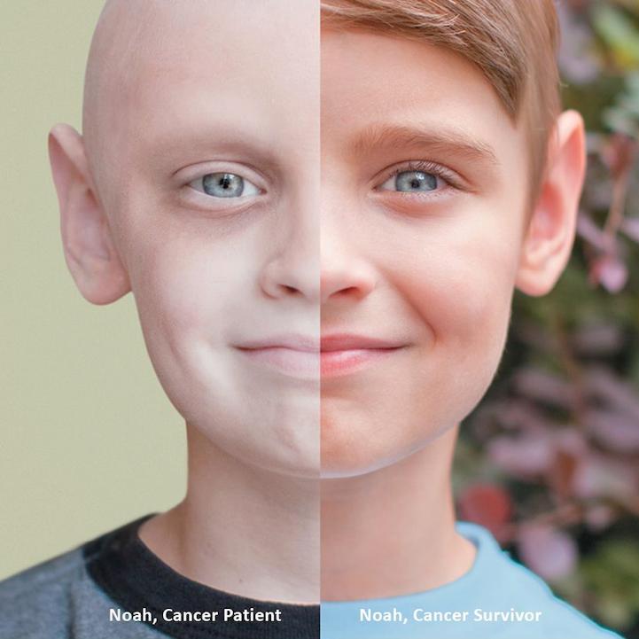 Gejala Penyakit Kanker