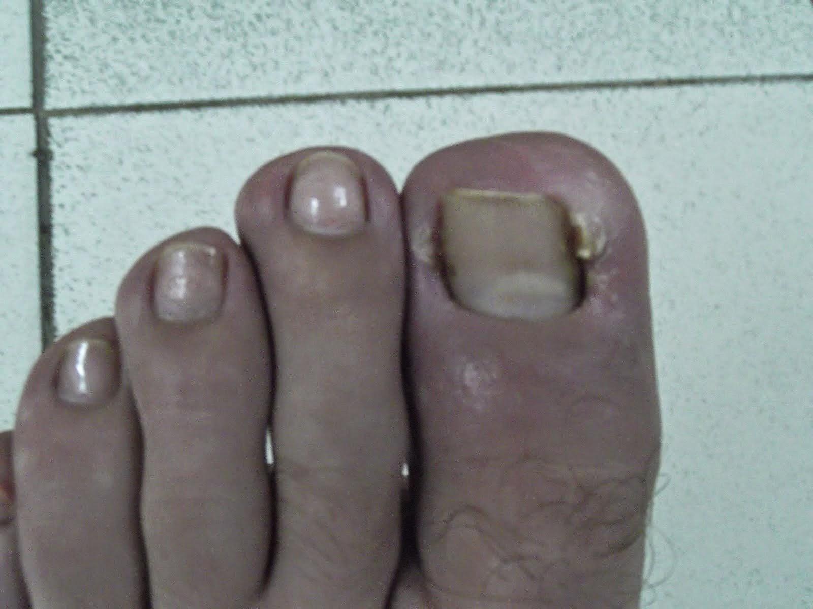 mac good toe