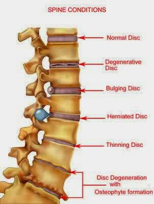 Nursing Care Plan for Pain (acute / chronic) r/t Herniated Nucleus ...