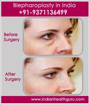 blepharoplasty in India