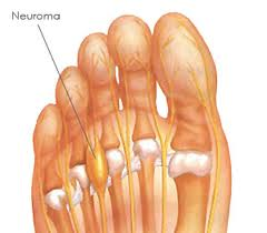 Morton's Neuroma Foot Tampa