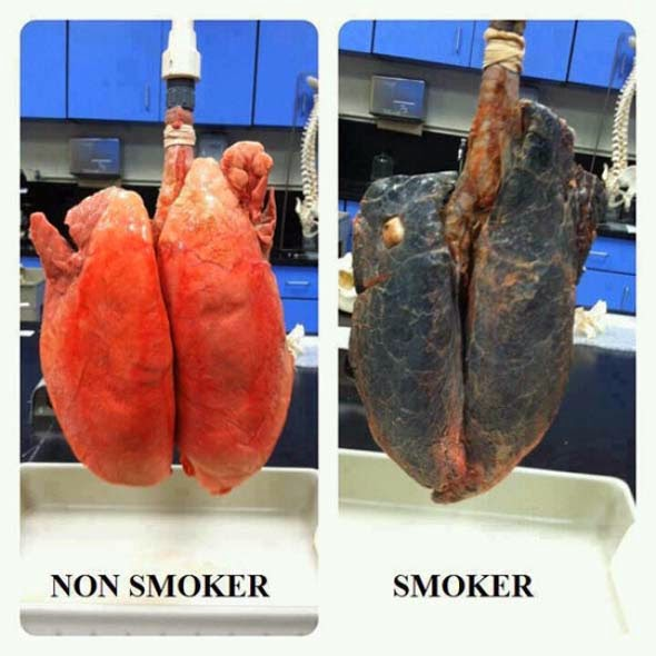 Funny picture for smokers