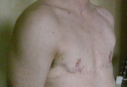 Vie, doctrine et sentences d'un obscur ftm: Musculation ftm