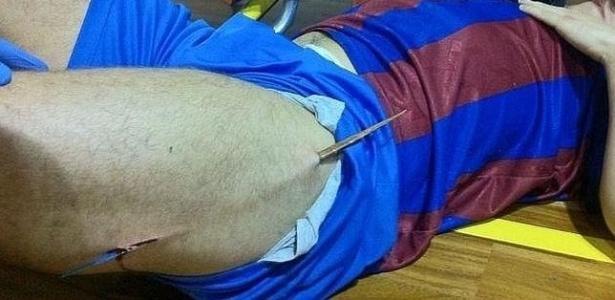 De futsal da espanha tem a perna perfurada por pedaço da quadra