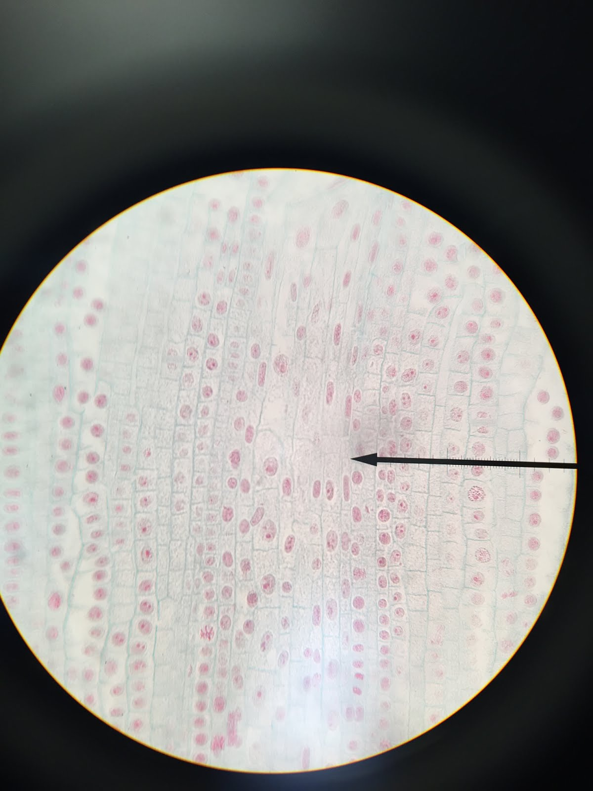 Mitotic Cell Division Lab | AP Biology 2015-2016
