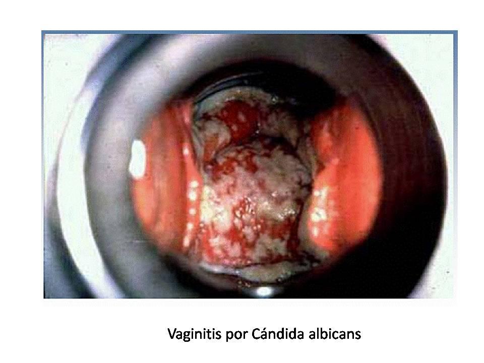 Vulvovaginitis Vaginitis por candida albicans