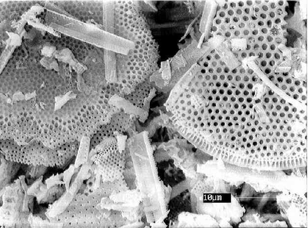 microscopic view of diatomaceous earth