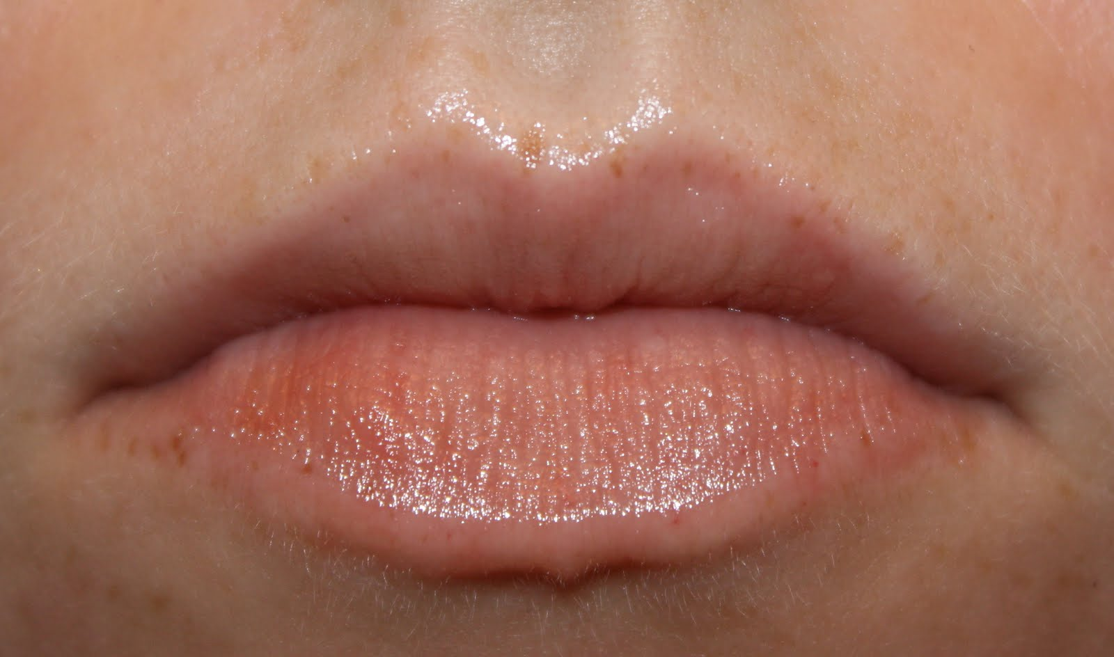 allergic reaction to chapstick brand? | Yahoo Answers