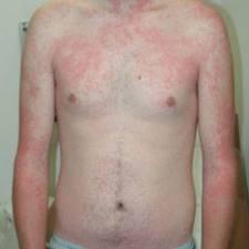 tanda-tanda penyakit gabak obat gabag tradisional