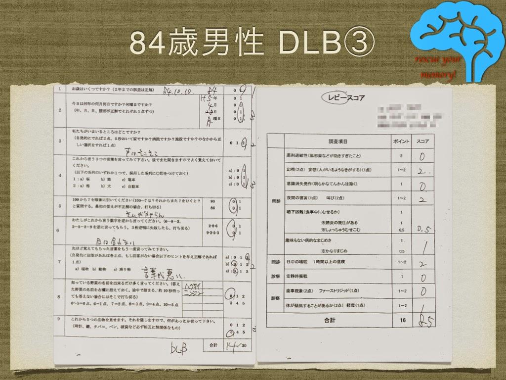 DLB 84歳男性 改善例③