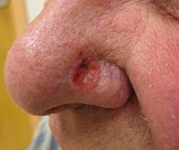 facial skin cancer pictures