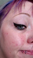 healing after tca peel red spots skin face cheek black liquid eyeliner pink hair