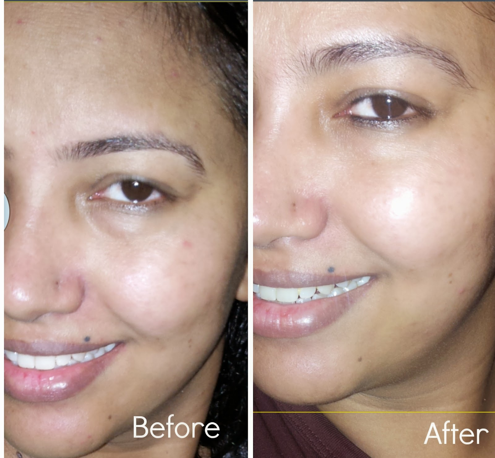 Before and After - Review of Lakme  Perfect Radiance Polishing Serum and Intense Whitening Light Creme