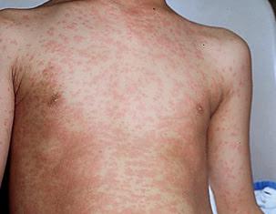 как выглядит аллергия на руках фото