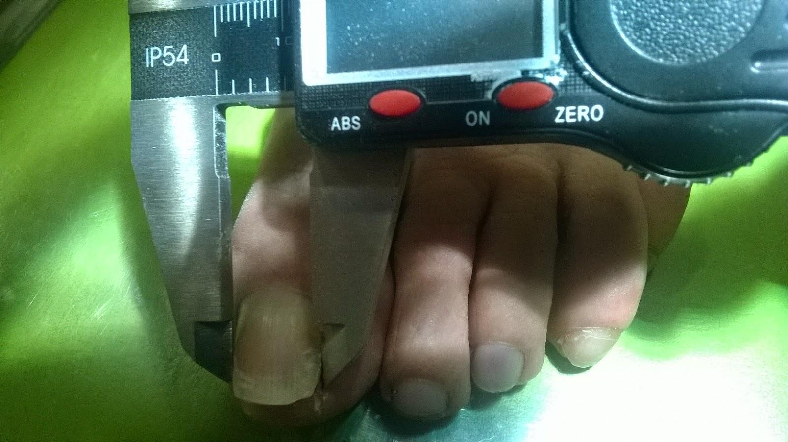 Reeducacion ungueal mediante botones linguales o brackets ...