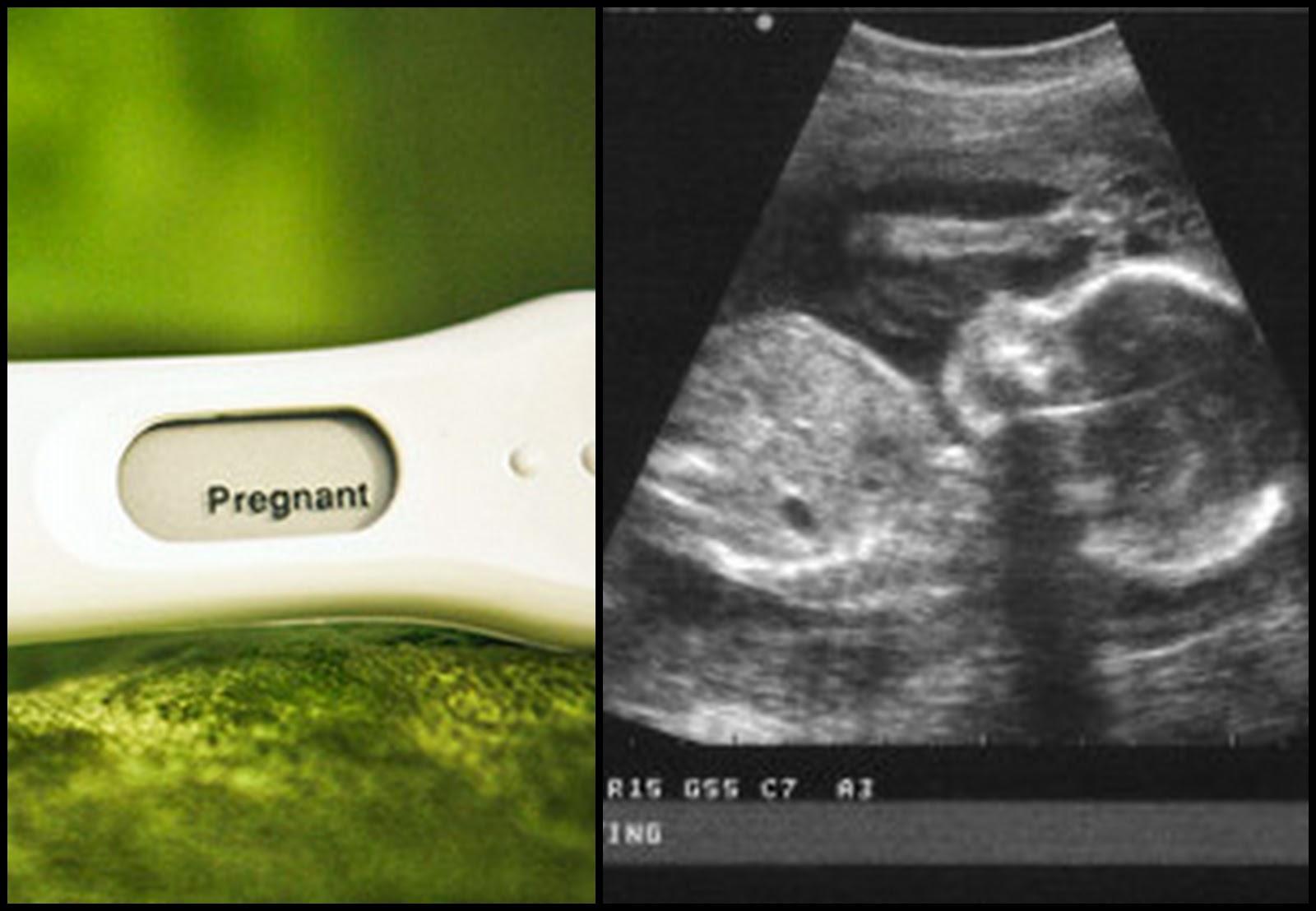 Muitas vezes Fraldas & Rabiscos: Formas giras de anunciar a gravidez! CK88