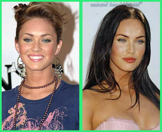 Megan fox implants
