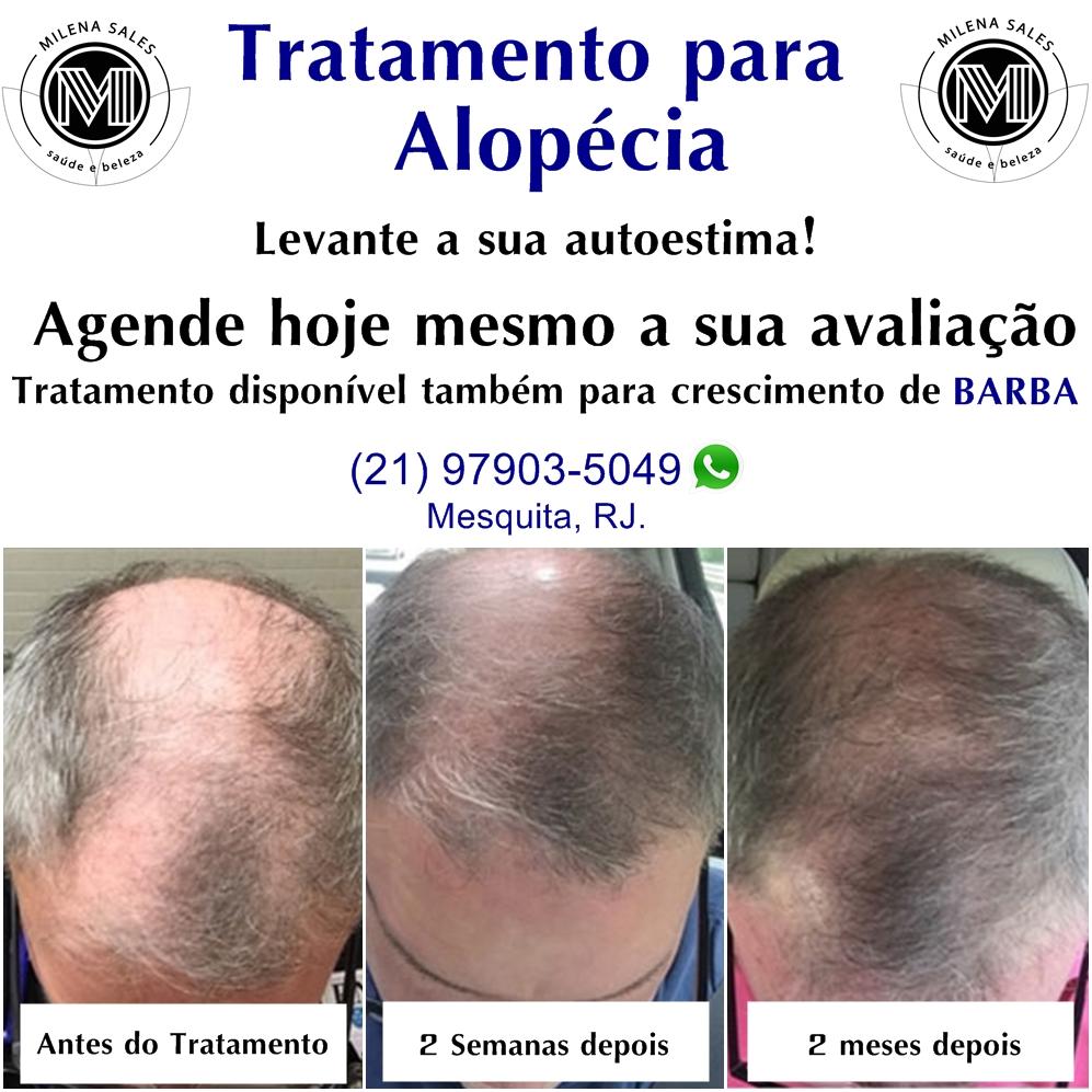 Alopécia e Quedas de Cabelos