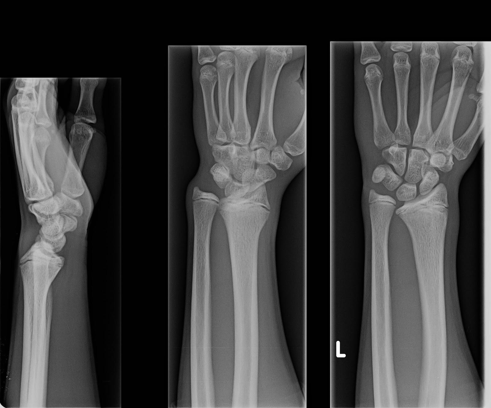 radius x ray
