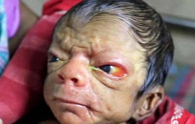Νεογέννητο δείχνει 80 χρονών! Ρυτίδες, ζαρωμένο σώμα και παχύ τρίχωμα απο τις πυρηνικές βόμβες που έριξαν οι δημοκράτες?