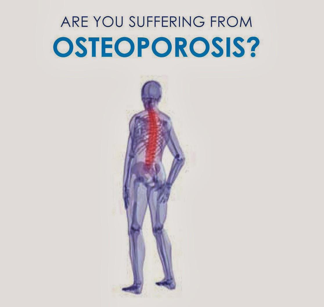 osteoporosis causes symptoms diagnosis treatment