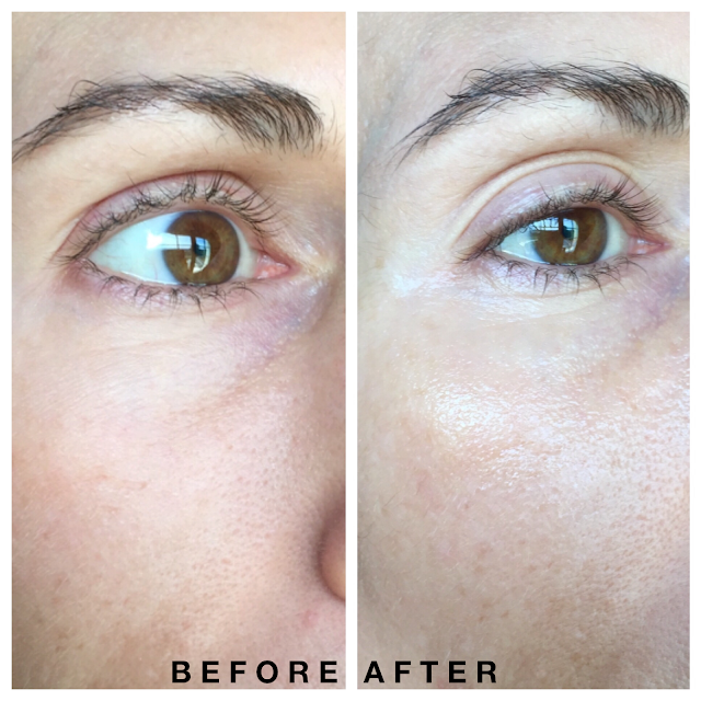 Shiseido Retinol Eye Mask Review BEfore & After