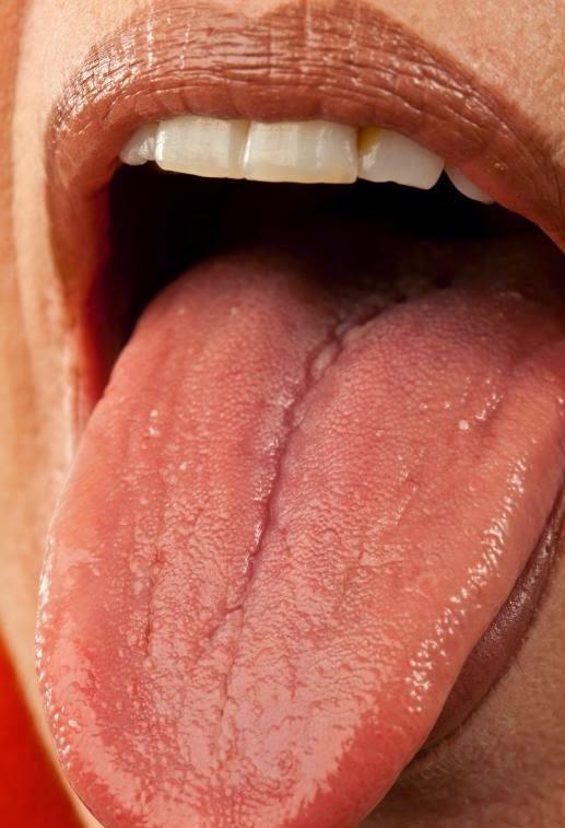 Symptômes de la gorge brûlante