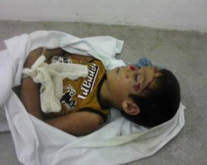 Garoto de oito anos morreu atropelado na zona rural de Caruaru