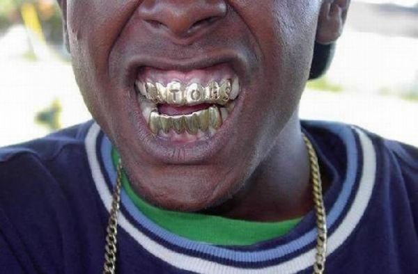Teeth jewellery in rap subculture is called Grillz.
