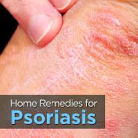 Remedios Para La Psoriasis Guttata