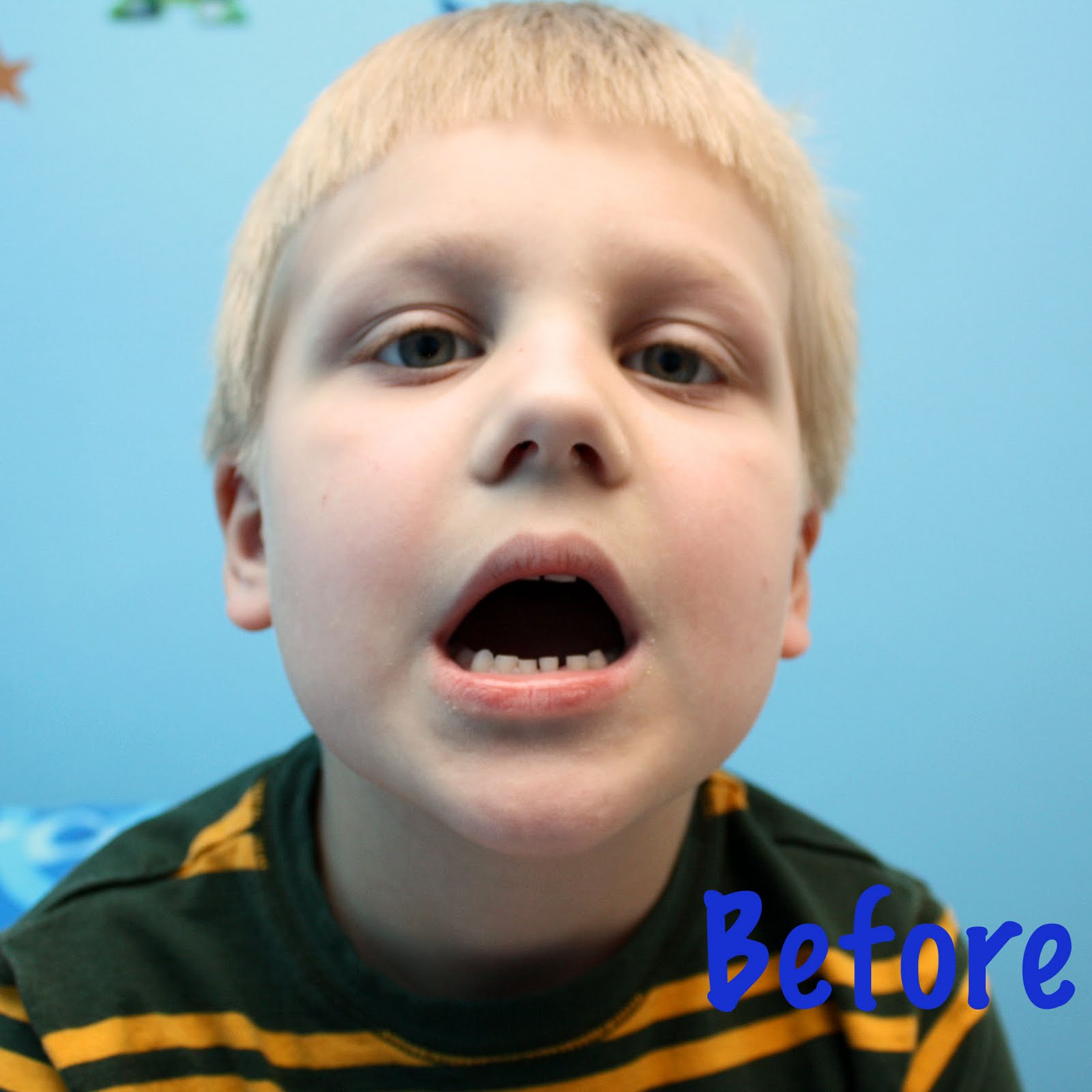 Wyatts First Lost Tooth