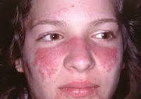 Cara mencegah penyakit lupus