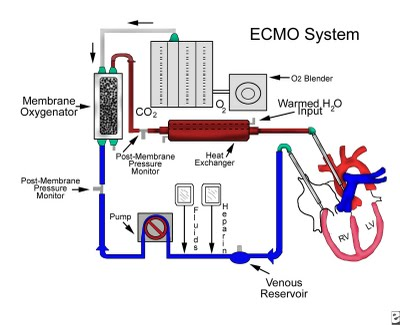 how can you be on an ecmo machine
