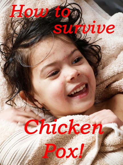 Chicken Pox Survival Guide