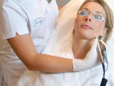 Phương pháp laser - Những phương pháp trị nếp nhăn hiệu quả